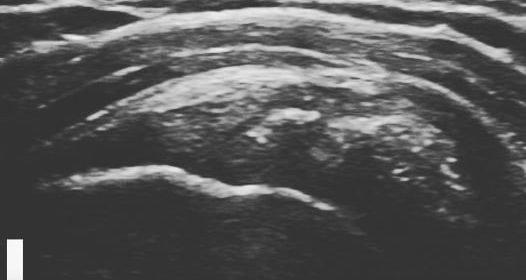 Θεραπεία με κρουστικό υπέρηχο (shockwave therapy) σε ασβεστοποιό τενοντίτιδα ώμου.